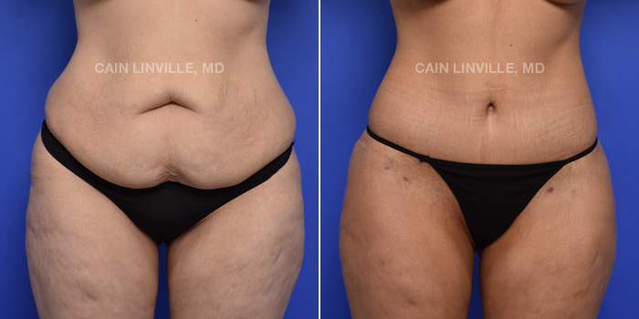 Tummy Tuck Before And After Patient 3A