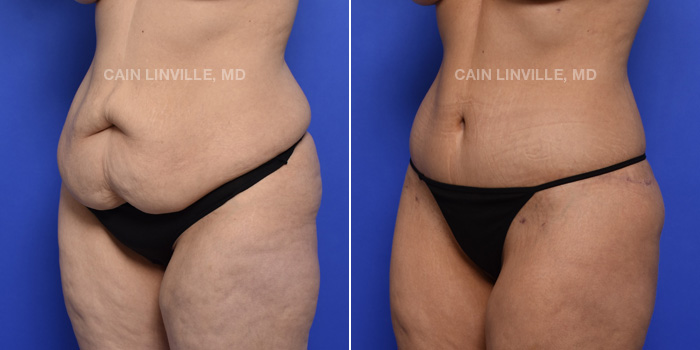 Tummy Tuck Before And After Patient 3B