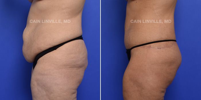 Tummy Tuck Before And After Patient 3C