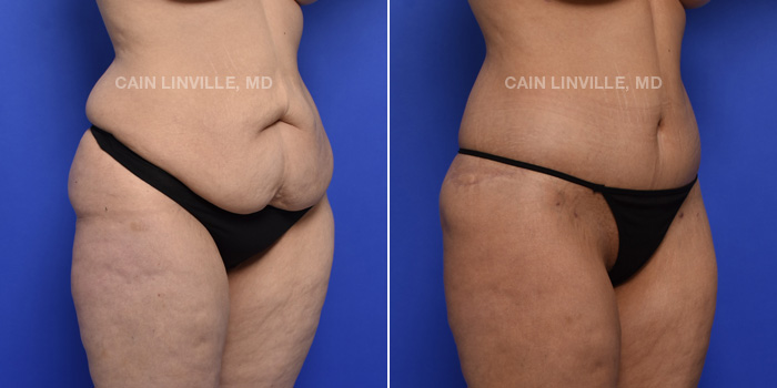 Tummy Tuck Before And After Patient 3D
