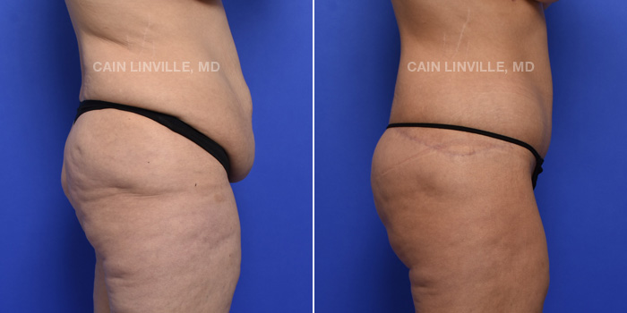 Tummy Tuck Before And After Patient 3E