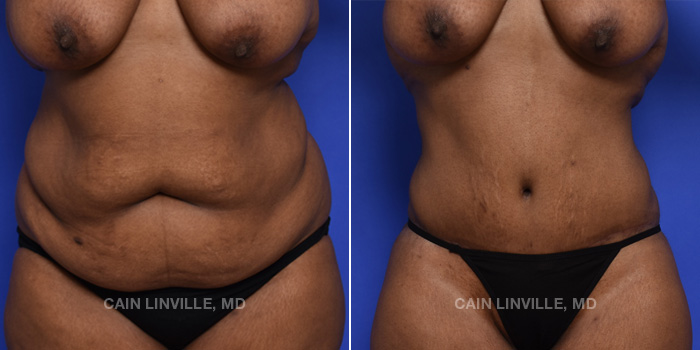 Tummy Tuck Before And After Patient 45A