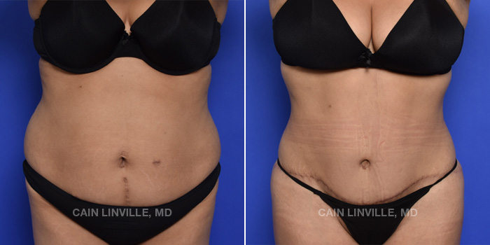 Tummy Tuck Before And After Patient 46A