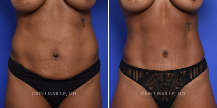 Tummy Tuck Before And After Patient 44A