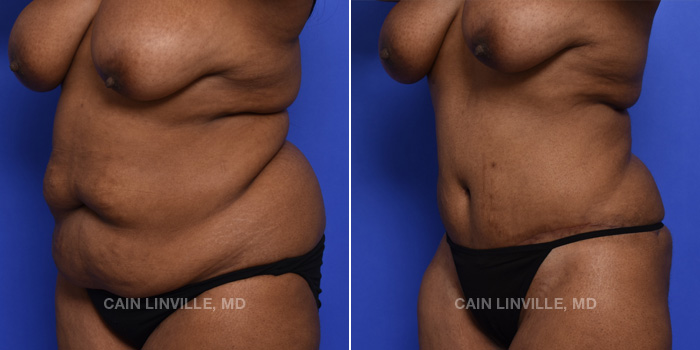 Tummy Tuck Before And After Patient 45B