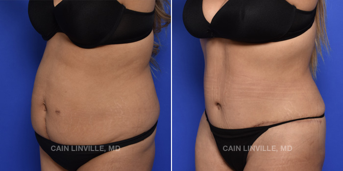 Tummy Tuck Before And After Patient 46B