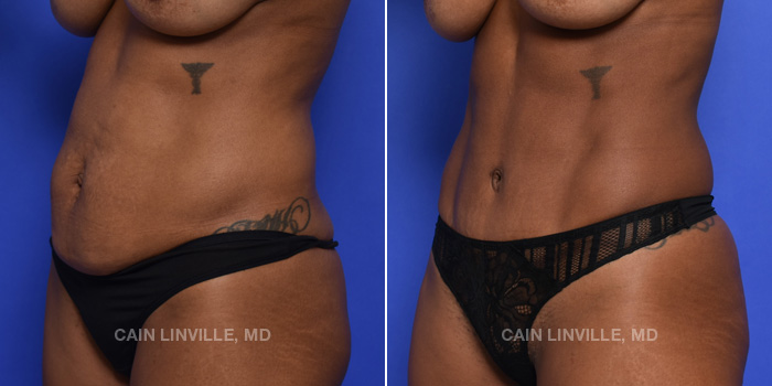 Tummy Tuck Before And After Patient 44B