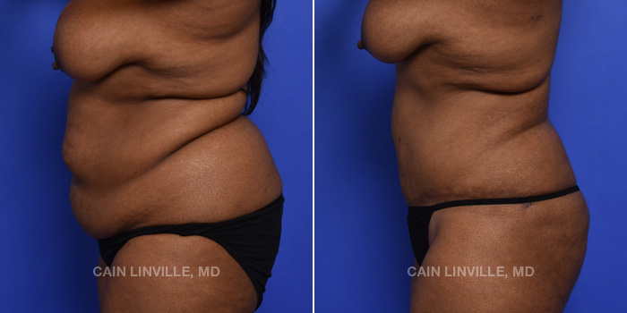 Tummy Tuck Before And After Patient 45D