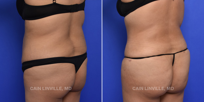 Tummy Tuck Before And After Patient 46D