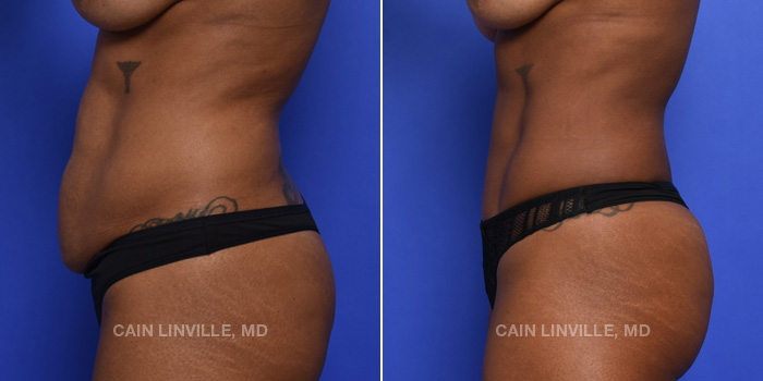 Tummy Tuck Before And After Patient 44D