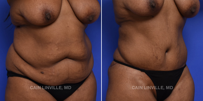 Mommy Makeover Before And After Patient 14C