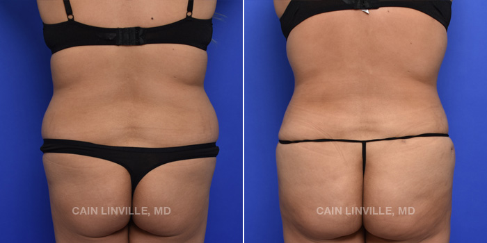 Brazilian Butt Lift Before And After Patient 15C