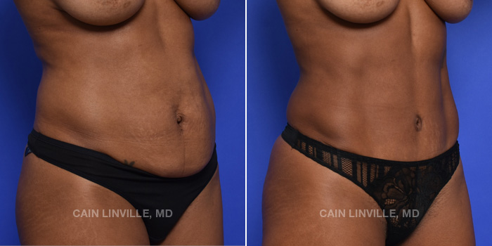 Tummy Tuck Before And After Patient 44C
