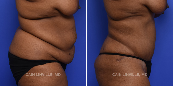 Tummy Tuck Before And After Patient 45E