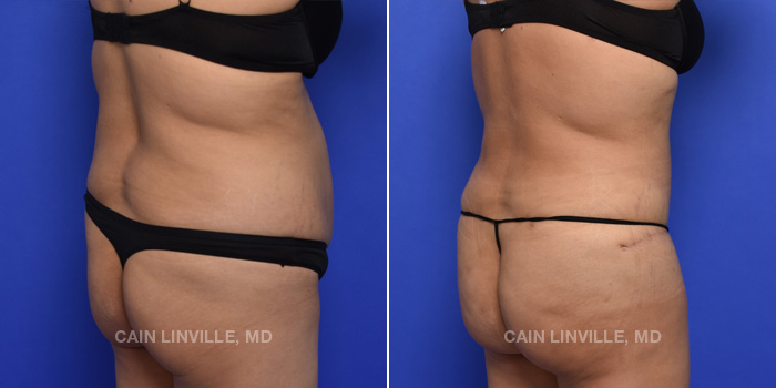 Tummy Tuck Before And After Patient 46E