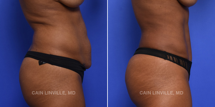 Tummy Tuck Before And After Patient 44E