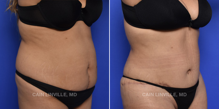 Tummy Tuck Before And After Patient 46C