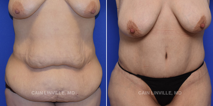Tummy Tuck Before And After Patient 48A