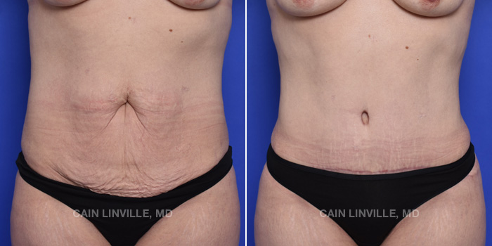 Tummy Tuck Before And After Patient 47A