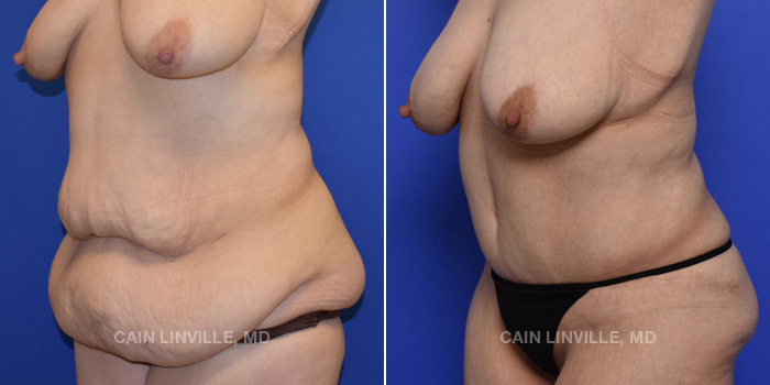 Tummy Tuck Before And After Patient 48B