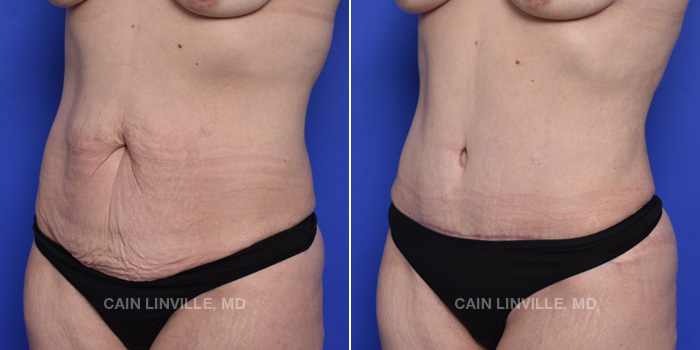 Tummy Tuck Before And After Patient 47B