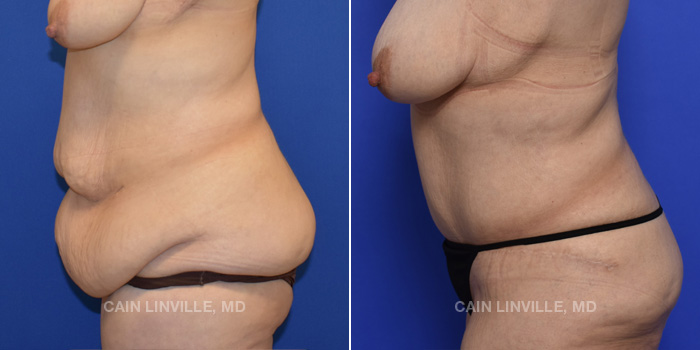 Tummy Tuck Before And After Patient 48D