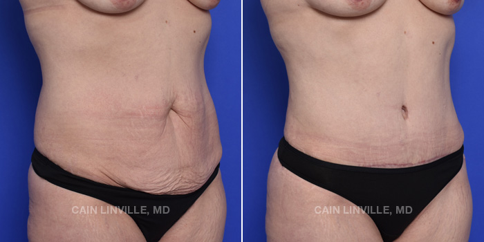 Tummy Tuck Before And After Patient 47C
