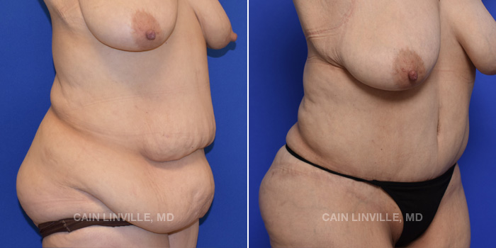Tummy Tuck Before And After Patient 48C