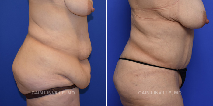 Tummy Tuck Before And After Patient 48E